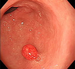 ポリープ 胃