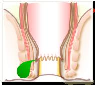 痛 特発 性 肛門